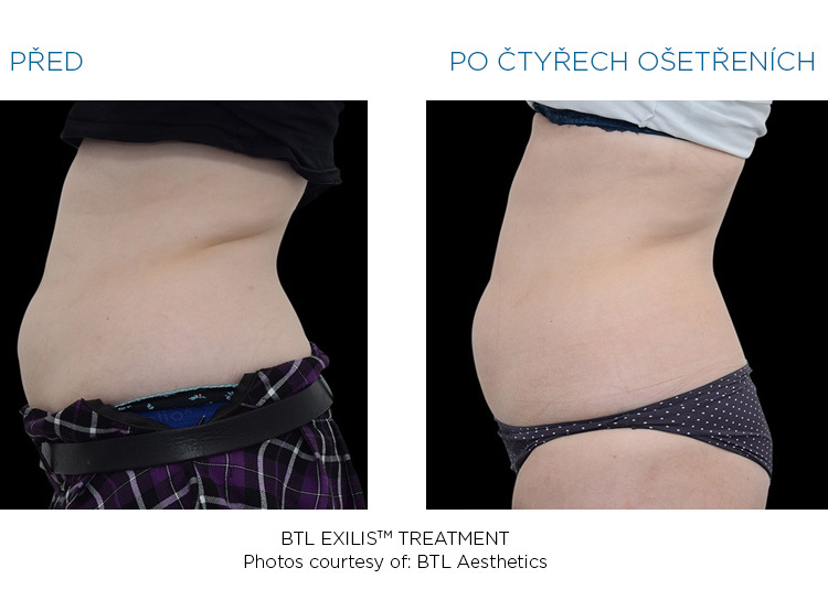 BTL-Exilis-female-bra-fat-before-after