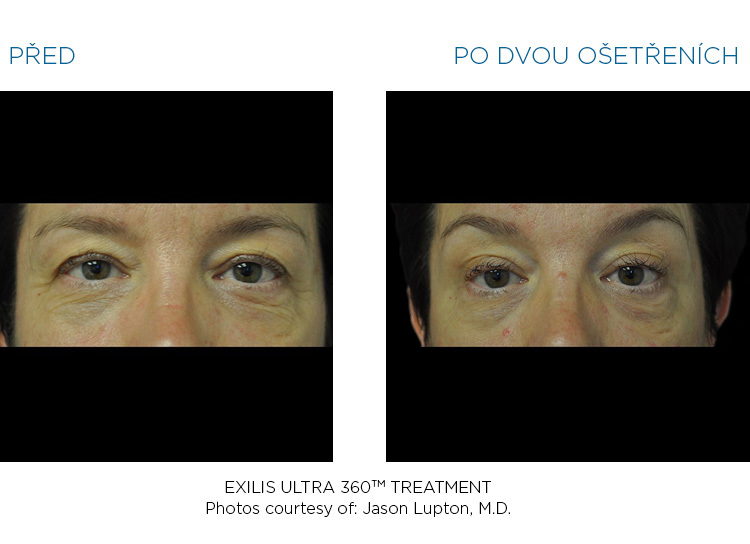 BTL-Exilis-ULTRA-360-female-eyes-before-after
