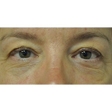 BTL-Exilis-ULTRA-360-female-eyes-before_thumb