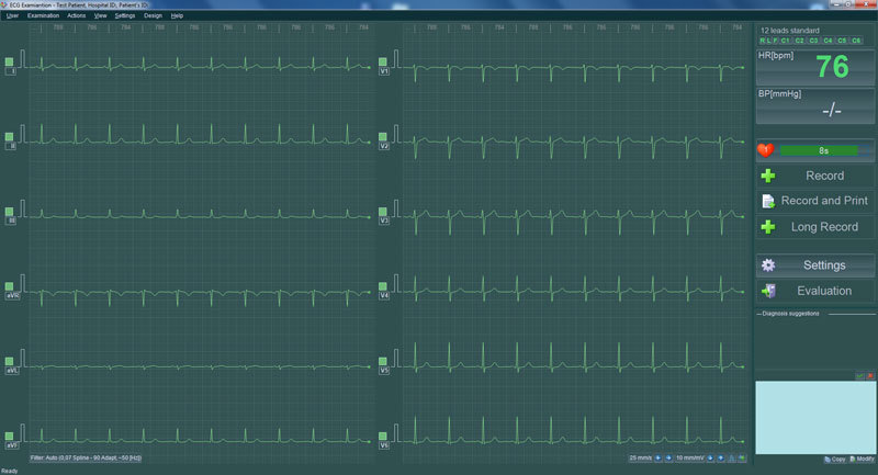 BTL-ECG-300_2_Recording