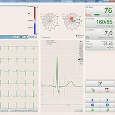 BTL-Cardiopoint-Ergo_600_5_Relief_map