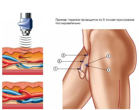 BTL_SWT_Urology_Treatment_of_Erectile_Dysfunction_RU_tc