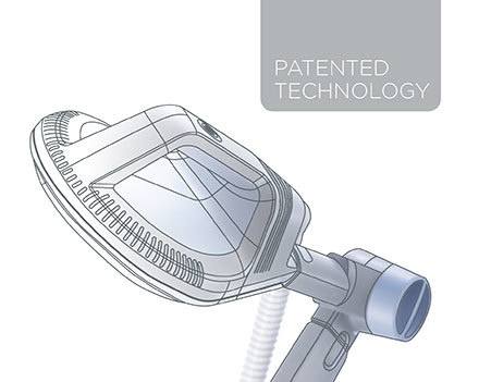 SIS_patented-technology__et